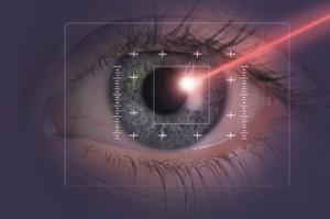 laser correction